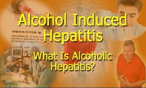 Features Specific to Alcoholic Hepatitis