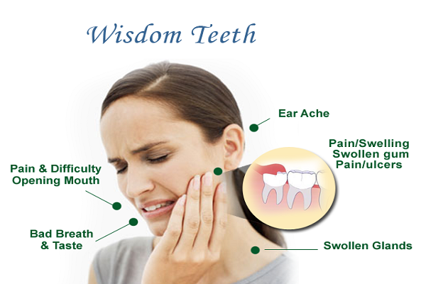 What Should You Expect After The Extraction of Your Wisdom Teeth?