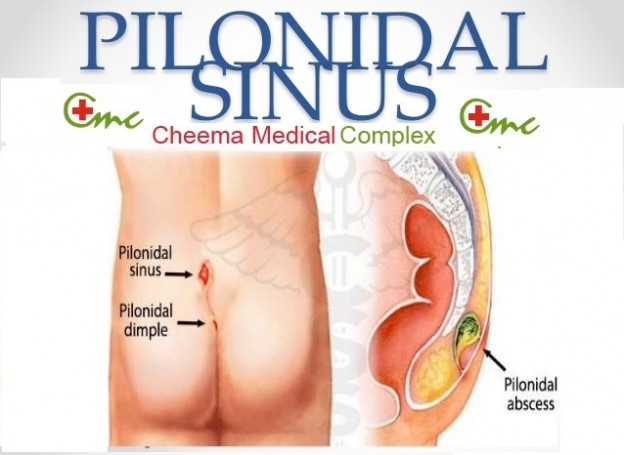 Reasons of having an itching butt: Pilonidal Sinus