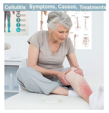 Cellulitis: Symptoms, Causes, and Treatments