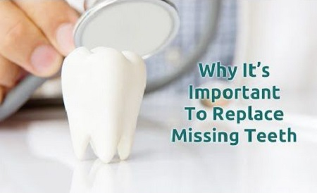 Why it is important to replace missing teeth?