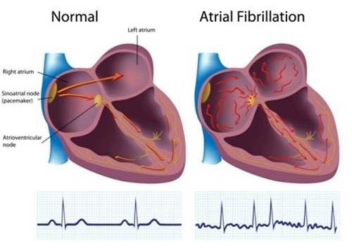 Tips shared by Patients and experts for those diagnosed with Atrial fibrillation