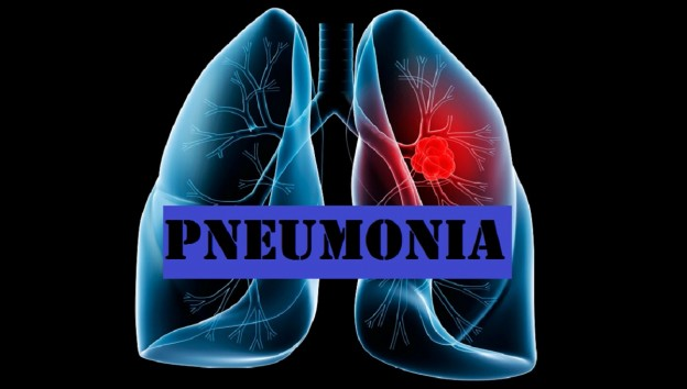 Pneumonia| Symptoms and Signs|Complications