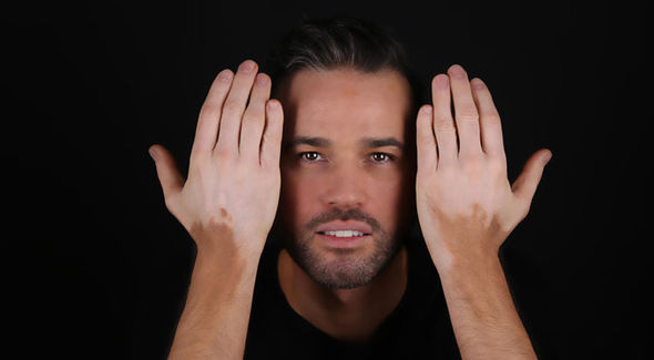 Vitiligo: Symptoms, Causes, and Treatments