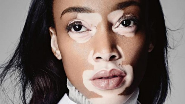 Vitiligo: Myths and Realities