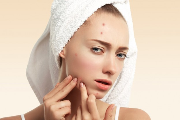 Is Sweat Causing Your Acne? How to Deal?