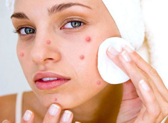 How to Get Rid of Acne Quickly and Fast – The Best Answer For All Acne Problems