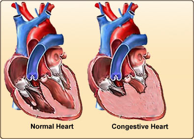 What Are the Best Methods for Congestive Heart Failure Treatment?