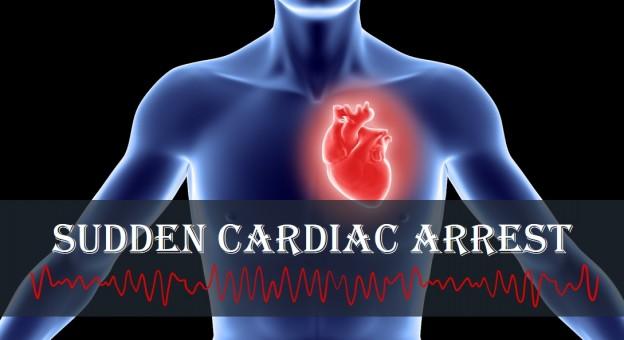 A Sudden Cardiac Arrest (SCA) is a Heart Attack?