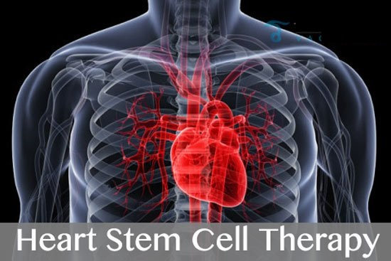 Stem Cell Therapy for Heart Failure