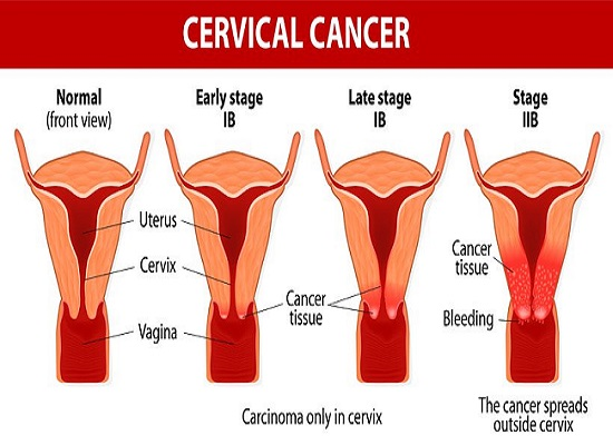 Cervical Cancer and Prevention