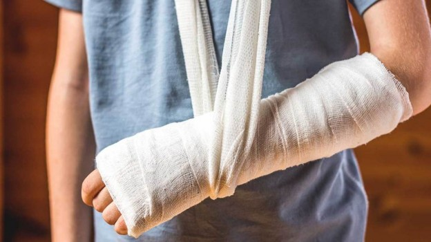 Your Broken Bone May Not Heal! What Are Nonunion Fractures!