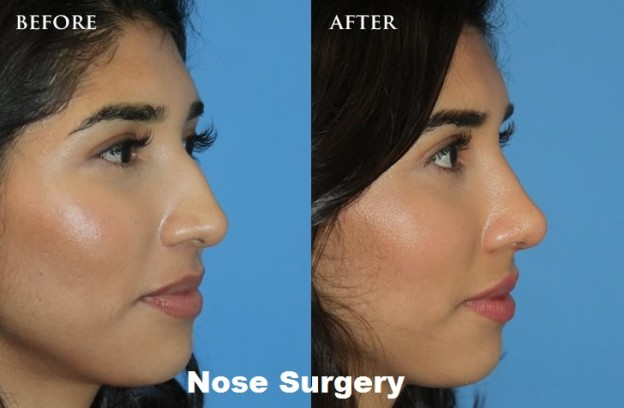 Nose Surgery: Rhinoplasty (Nose Job) Overview