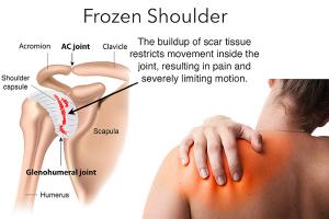 Frozen-Shoulder-Adhesive-Capsulitis-fb-osmi-1024x534