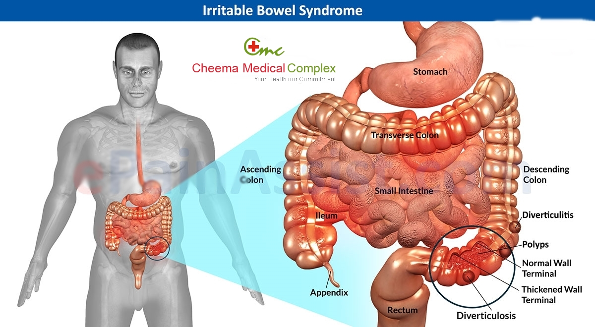 Irritable Bowel Syndrome: A Deep Insight into the Common Digestive disorder