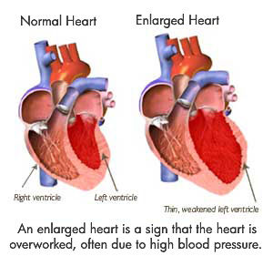 enlarged-heart-valve-disease-problem