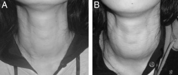 What is Thyroid Swelling?
