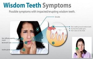 wisdom-tooth-symptoms-1024x566