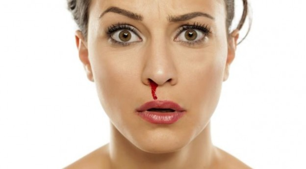 What is Epistaxis?