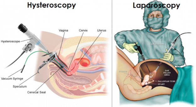 Recovery Time for Total Laparoscopic Hysterectomy (TLH)