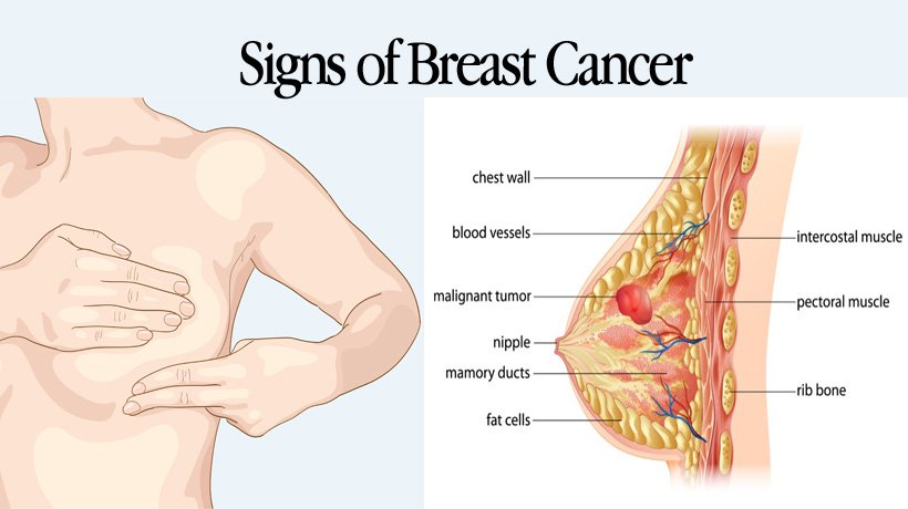 Breast Diseases Or Breast Cancer Signs And Symptoms